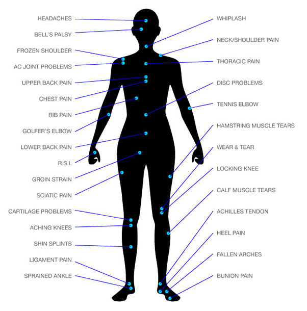 our treatments dublin spine and sports physiotherapy clinic full body blood vessel diagram